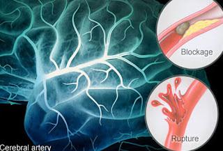 Penyebab Serangan Penyakit Stroke