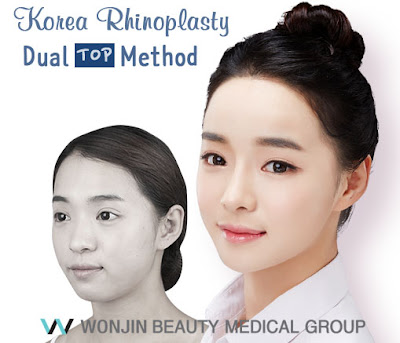 Korea Rhinoplasty Dual Top Method
