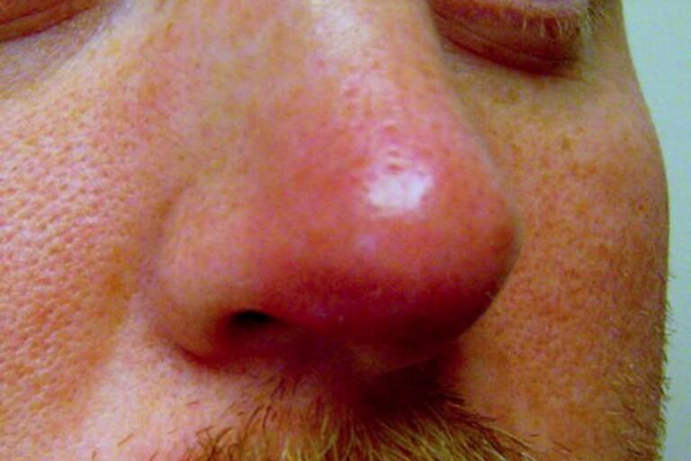 Furunculosi-nasal-vestibule