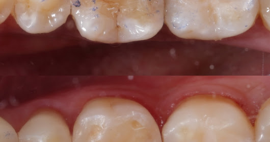 TOP 10 ways to improve standardization in terms of COMPOSITION in dental photography