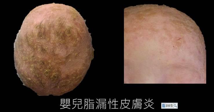 嬰兒脂漏性皮膚炎相片