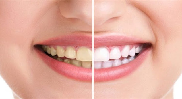 18 Cara Alami Bikin Gigi Kamu Tetap Putih Cemerlang