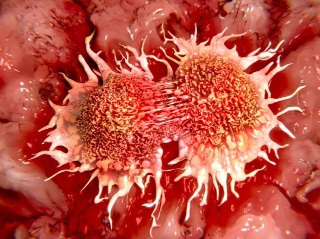 कैन्सर और ग्रन्थि- cancer in ayurveda