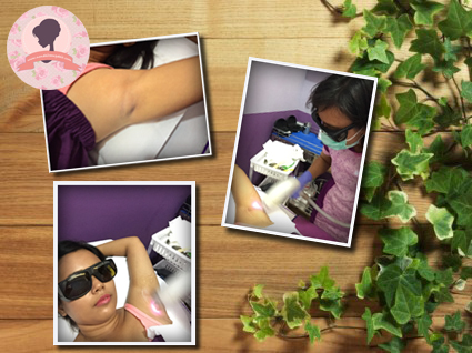 De-hair-laser-treatment