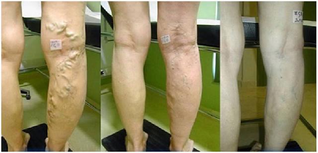 Walaupun varises tidak sangat serius, mereka kadang-kadang dapat menyebabkan masalah lain. katup dan pembuluh darah di kaki Anda dapat rusak yang disebabkan mereka.
