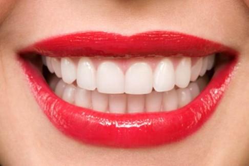 خلطات برازيلية لتبييض الأسنان…ستبهرك نتائجها Les-dentssss-486x324