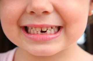 tips merawat gigi susu pada anak