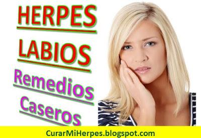 herpes-en-el-labio-como-se-cura-naturalmente-brotes-boca-remedios-caseros
