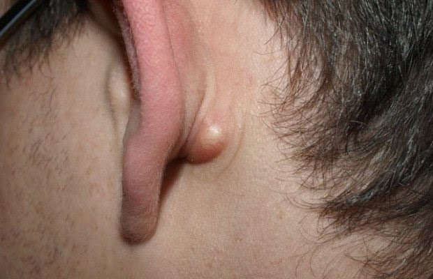 Home Remedies for Sebaceous Cyst ~ Tips World