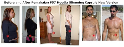 Before and After Pemakaian P57 Hoodia Slimming Capsule New Version