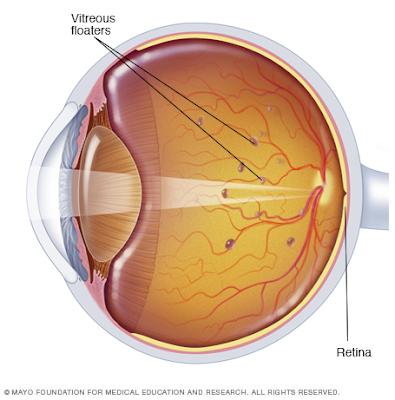 Eye Floaters Mayo Clinic