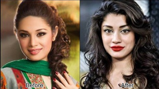 Sidrah Batool before and after plastic surgery