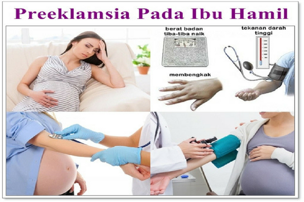 Kenali Komplikasi `Preeklamsia-Eklampsia` Penyebab Kematian Ibu Hamil