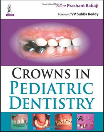 Crowns in Pediatric Dentistry - Prashant Babaji (2015) [PDF]