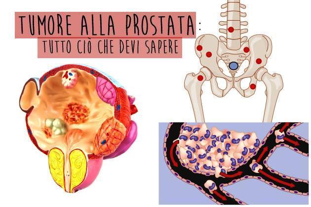 trattamento delletà del cancro alla prostata