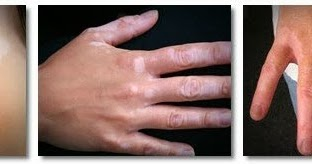 Vitiligo skin disease symptoms and treatment