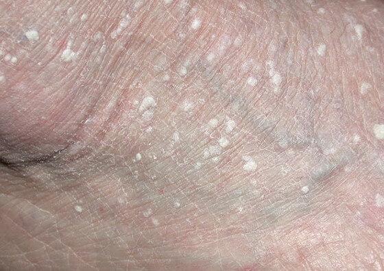 white bumps on feet