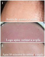 Antes e depois da argila na face