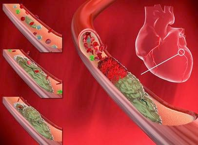 Gambar penyumbatan pembuluh darah