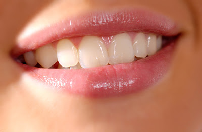 Kết quả hình ảnh cho đó chính là tẩy trắng răng bằng