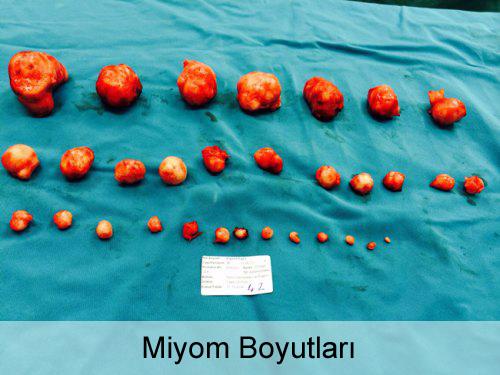 Miyom Boyutları