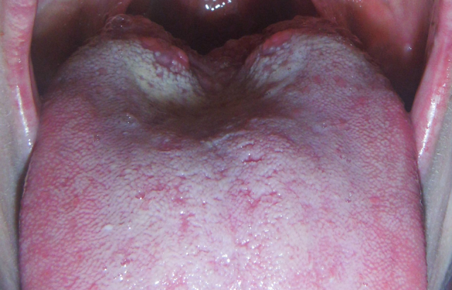Bumps on Back of the Tongue