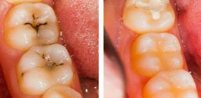 وصفة طبيعية تقضي على تسوس الأسنان لا داعي للحشو