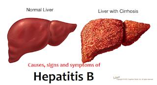 Obat Hepatitis B Alami Paling Ampuh