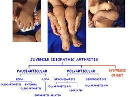 boli articulare acesta boli articulare și apă