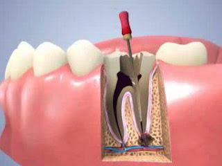 Quy trình lấy tuỷ răng được thực hiện như thế nào ?