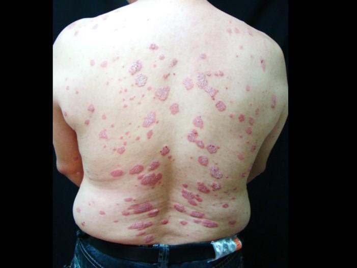 板塊型乾癬(尋常性乾癬,Plauqe type)