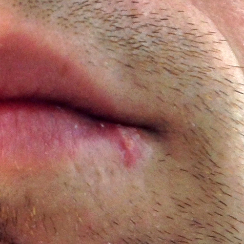 I Strive 2 Thrive Day 51 Cold Sore