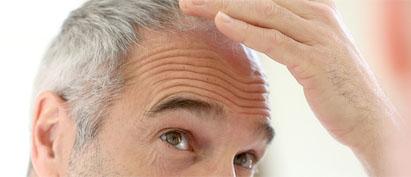 تجربتي مع زراعة الشعر في ادمه