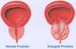 Image result for Considerate Prostatic Expansion