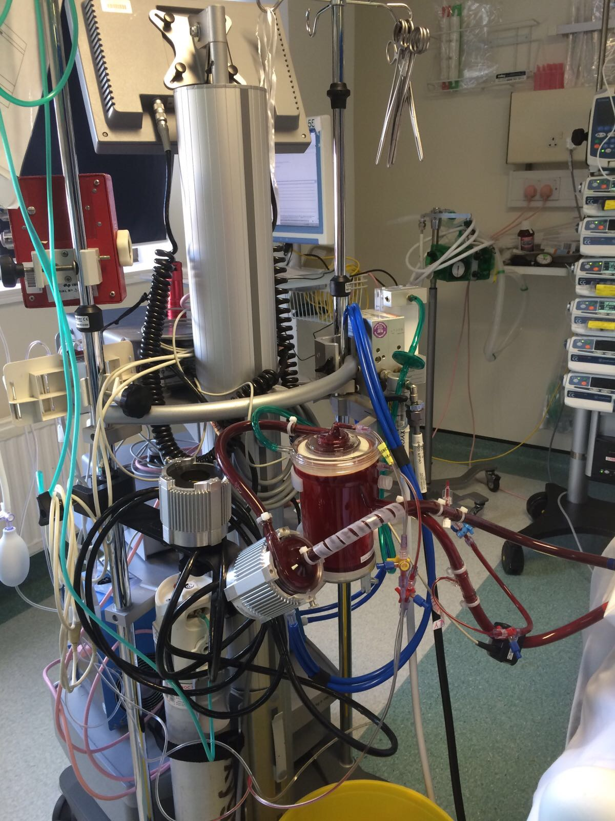cystic fibrosis niv, cystic fibrosis lung transplant, cystic fibrosis ecmo, ecmo lung transplant