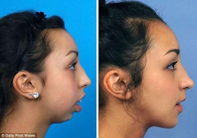 cambio increible en mandibula y dentadura