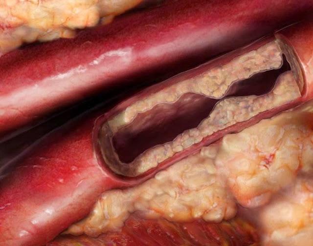 comeviversani le vene e il colesterolo