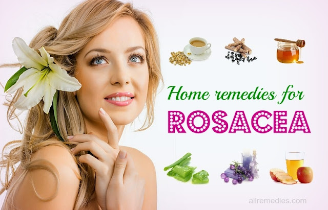 Home Remedies To Get Rid Of Rosacea