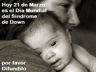 Imagen de una madre con su bebé con Síndrome de Down