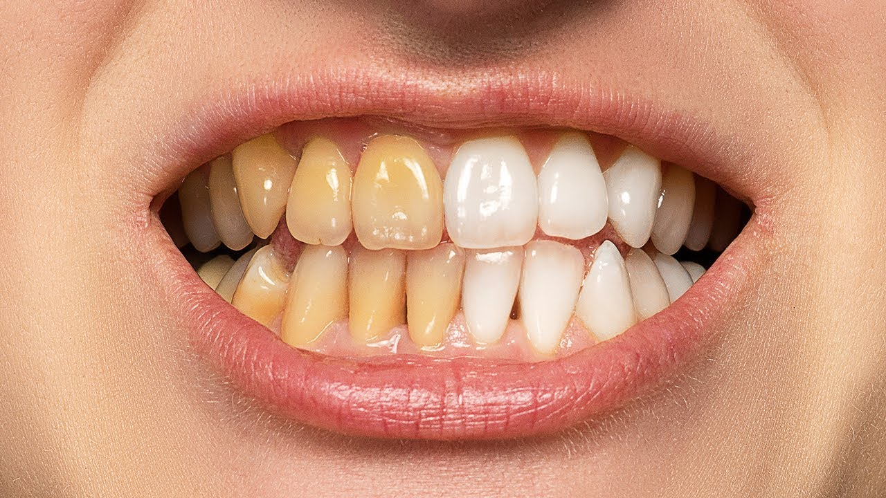 The BEST Way to Whiten Teeth in Photoshop