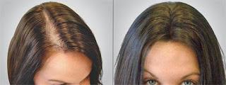 Dites adieu aux cheveux fins avec ces lotions traditionnelles de repousse des cheveux