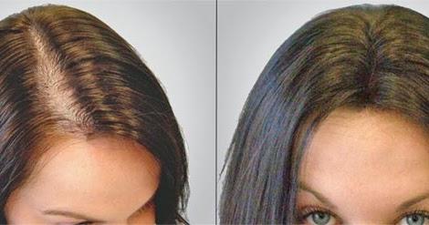 Huile de ricin pousse des cheveux