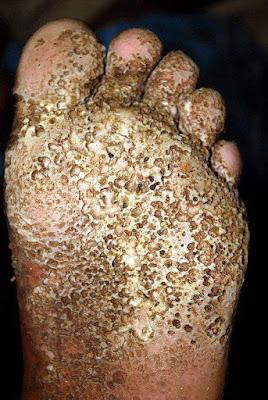 Penyakit-telapak-kaki-Pitted-Keratolysis