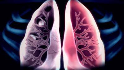 pengobatan tb paru secara tradisional