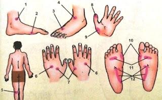 Titik-Titik Refleksi untuk Penyakit Asma