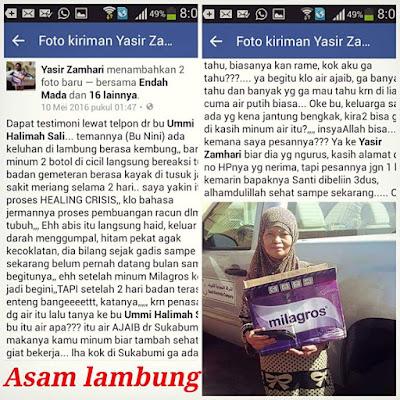 Testimoni: Asam Lambung