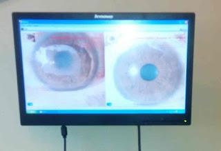 gambar operasi mata terkena lem G