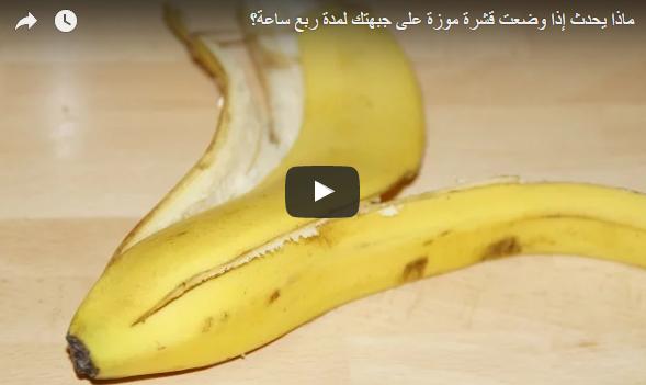 فوائد قشر الموز لعلاج الصداع