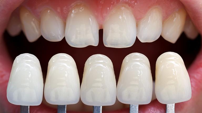 Kết quả hình ảnh cho Không bao giờ thay đổi liều thuốc theo toa răng sứ