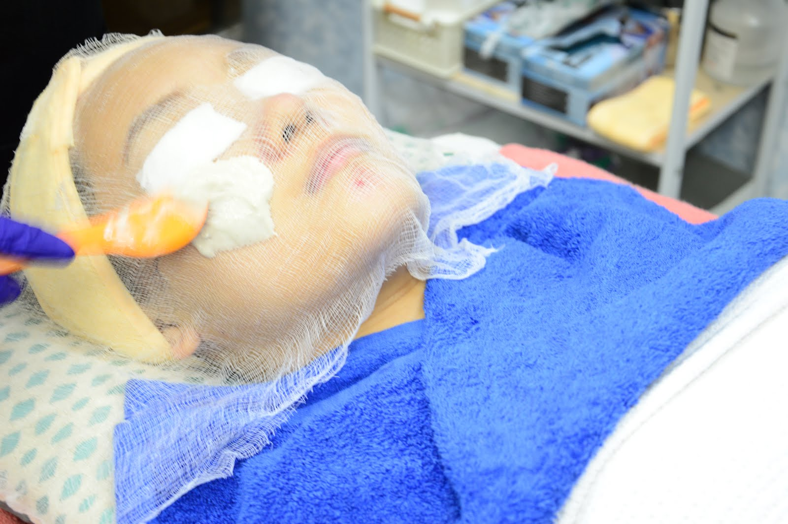 nexus clinic medi spa facial review